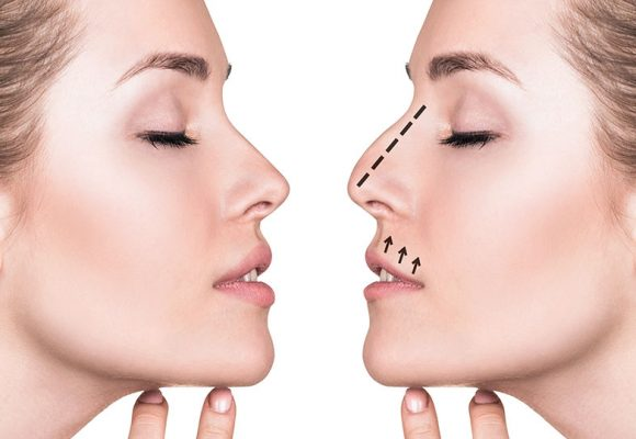 Personalized Rhinoplasty (Specialrhinoplasty)